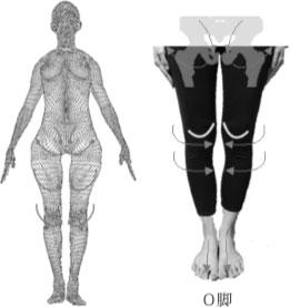 O脚と骨盤の関係